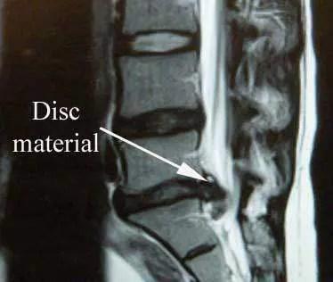 Herniated Disc MRI2 - El Paso Chiropractor