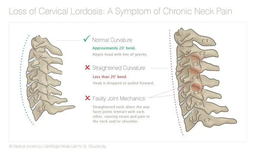 Loss of Cervical Lordosis Diagram - El Paso Chiropractor