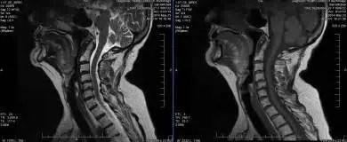 Neck Damage in MRI - El Paso Chiropractor