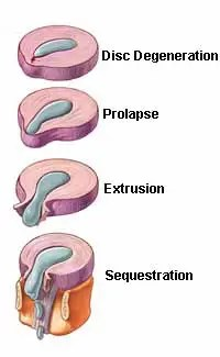 Progression of Herniated Disc - El Paso Chiropractor