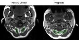 vătămare corporală doctor whiplash ct scan el paso tx