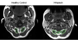 kişisel yaralanma doktoru whiplash ct scan el paso tx
