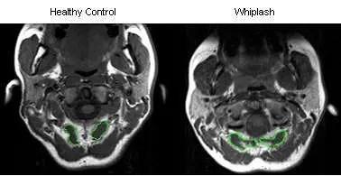 Whiplash CT Scan