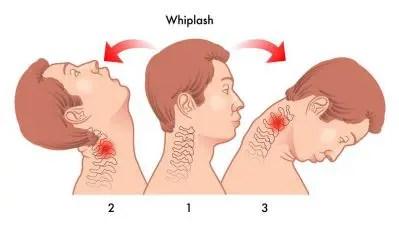 Diagramma di Whiplash - Chiropratico di El Paso