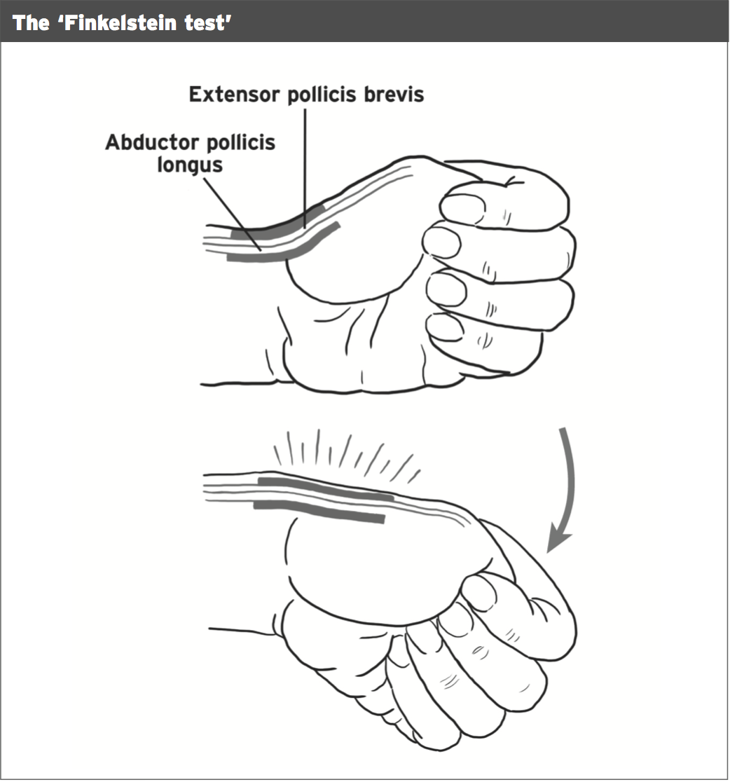Wrist Pain De Quervain S Syndrome