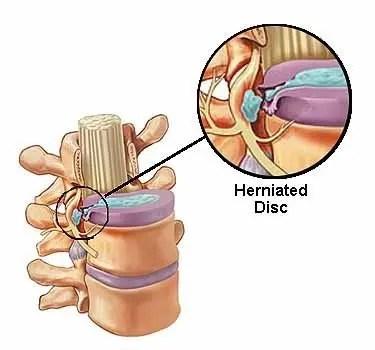 herniated disc - El Paso Chiropractor