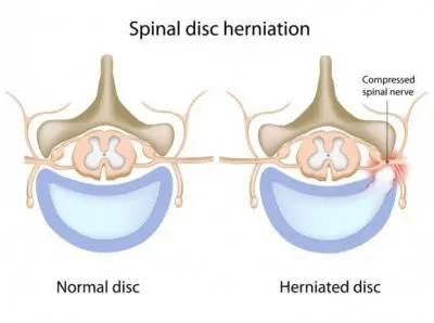 Normal and Herniated Disc Diagrams