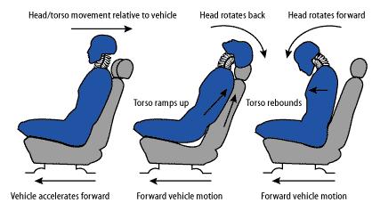 mechanism of whiplash injury - El Paso Chiropractor