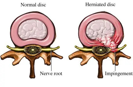 Herniated Disc Image Diagram