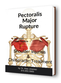 Shoulder Injuries and Chiropractic Treatment Ebook Cover
