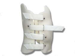 tratamiento de escoliosis el paso tx.