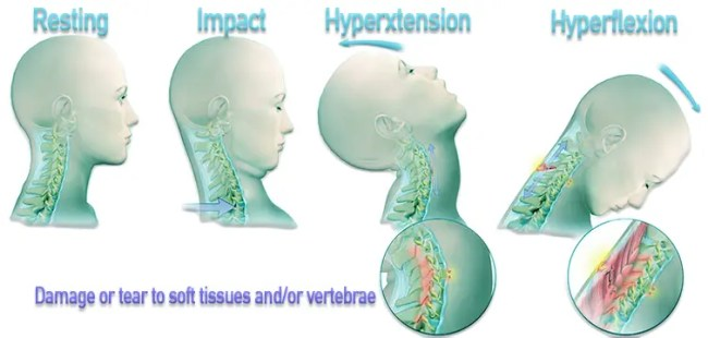 Diagram showing the process of whiplash resulting from an automobile accident.