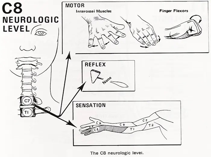 Radiculopathy? What Is It? • Chiropractic Scientists • 915