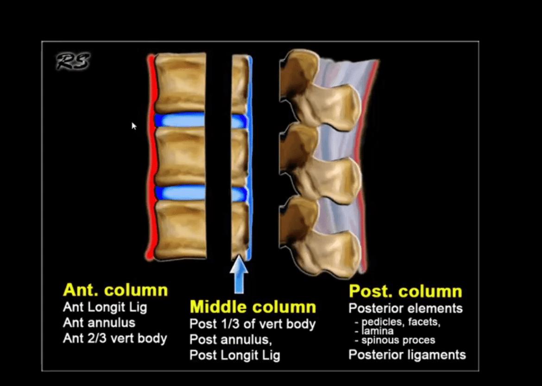spinal trauma el paso tx.