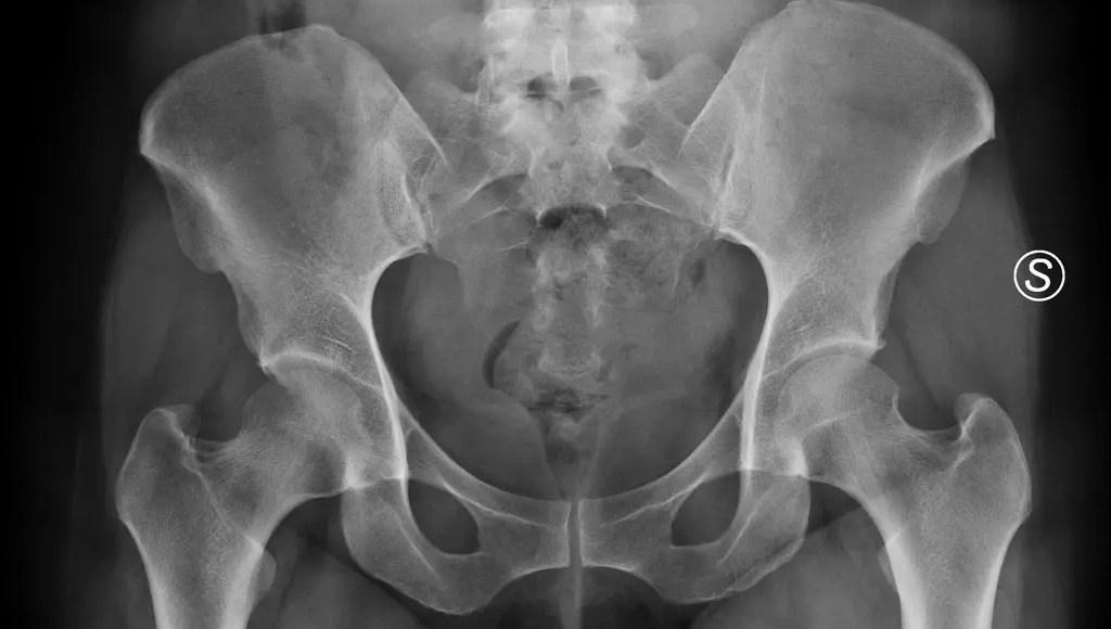 Osteitis Pubis-Traktado | El Paso, TX Chiropractor