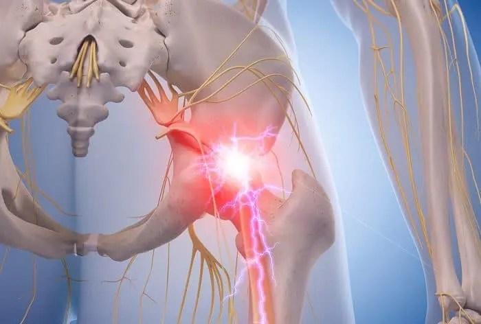Manejo del síndrome piriforme | El Paso, TX Quiropráctico