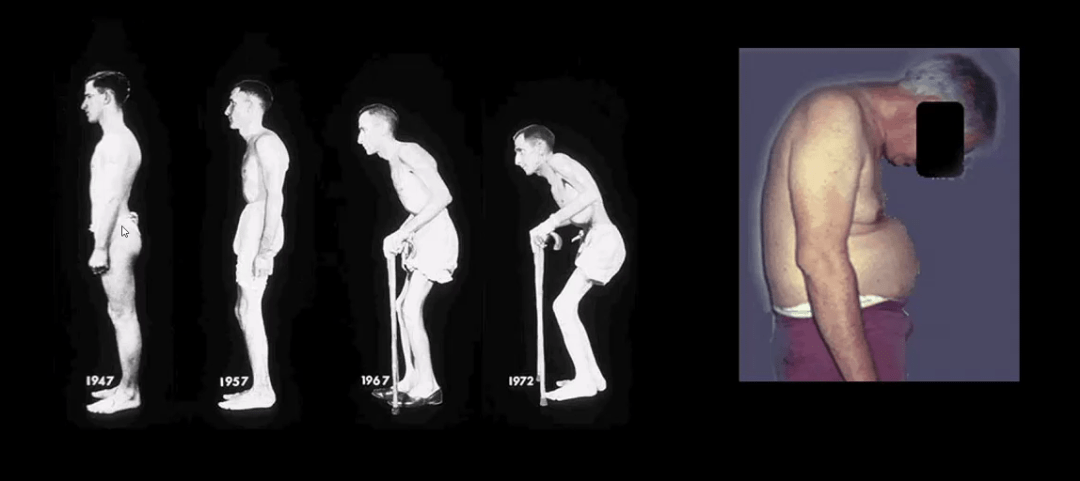 artrite spinale el paso tx.