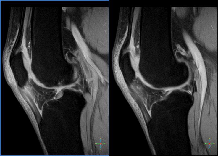 patello femoralis arthrosis kezelés