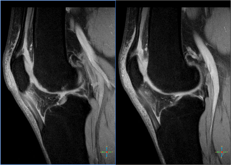 Диагностика изображений, демонстрирующая коленный сухожилие коленного сустава или перемычку.