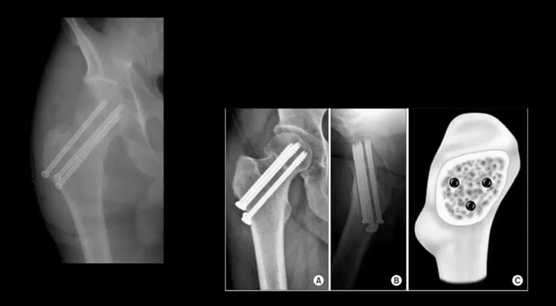 pelvis trauma el paso tx.
