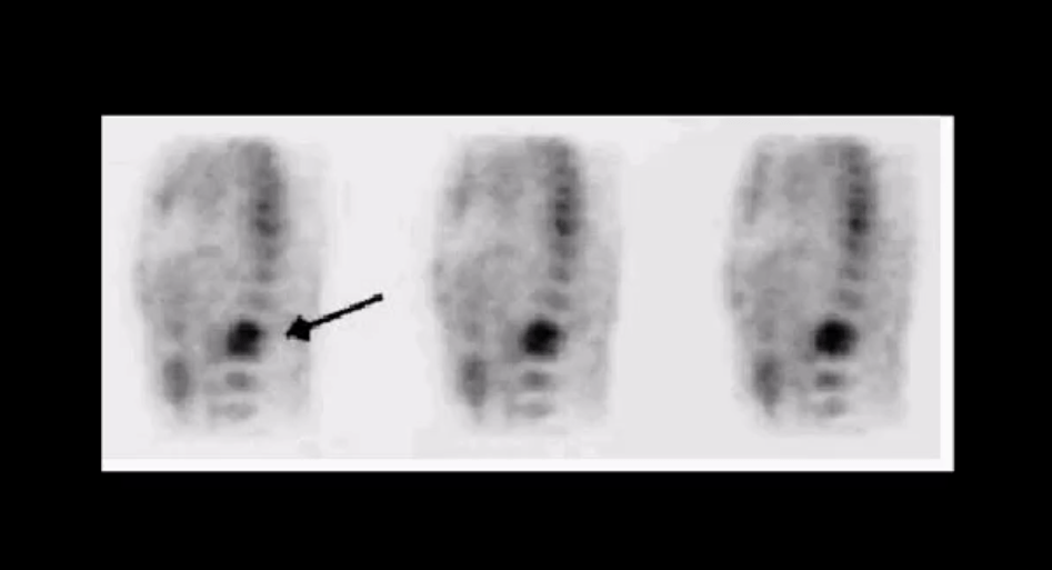spinal infection diagnostic imaging el paso, tx.