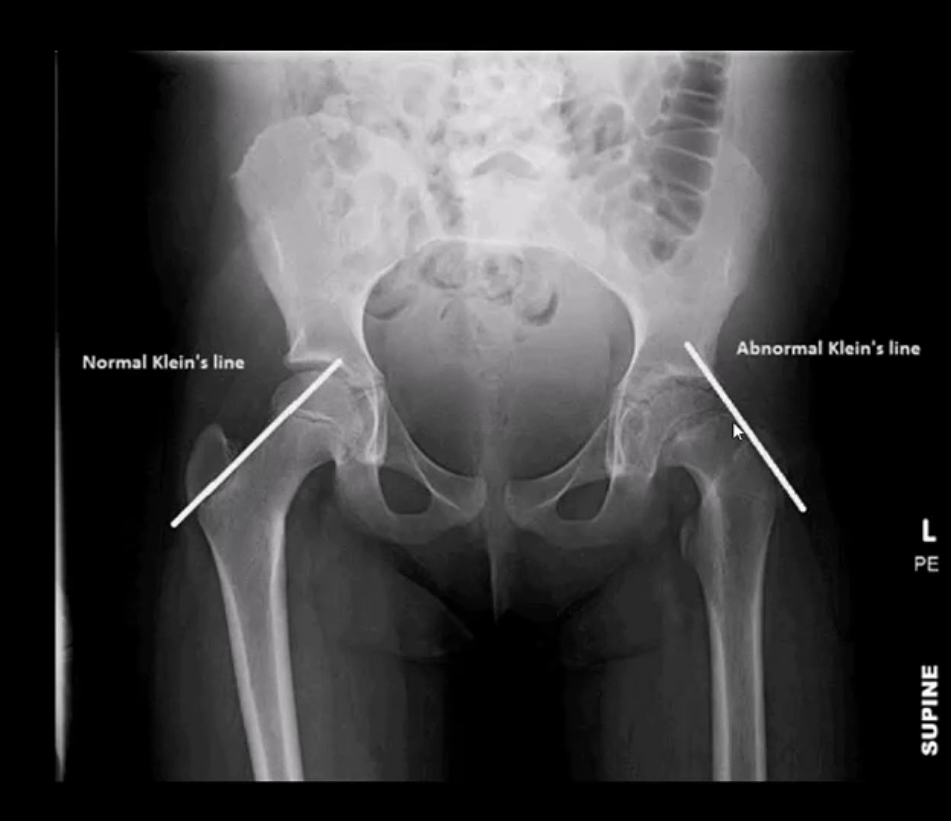 diagnosis hip arthritis and neoplasms el paso, tx.