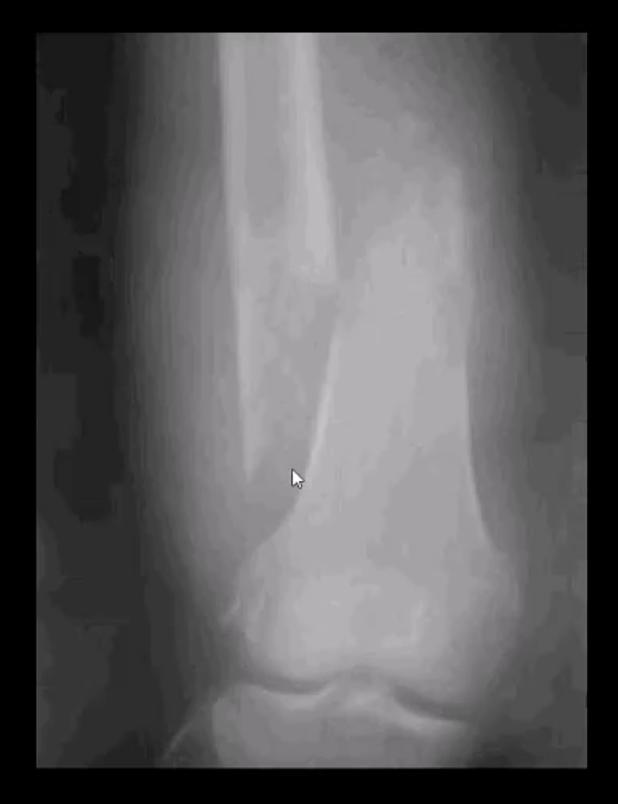 spinal neoplasms diagnostic imaging el paso tx.