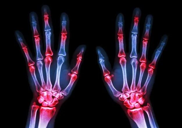 Immagine a raggi X delle mani che dimostrano l'artrite reumatoide.