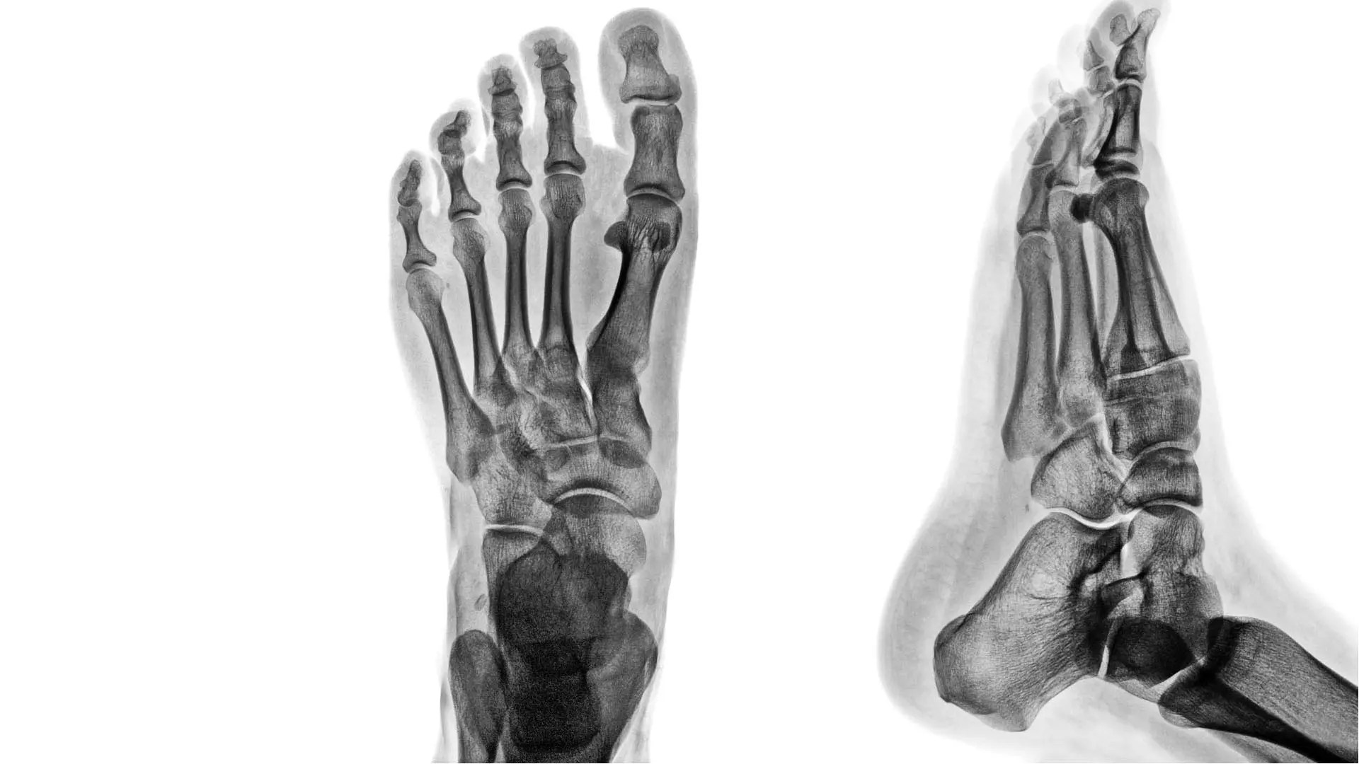 kezeületi betegség bursitis