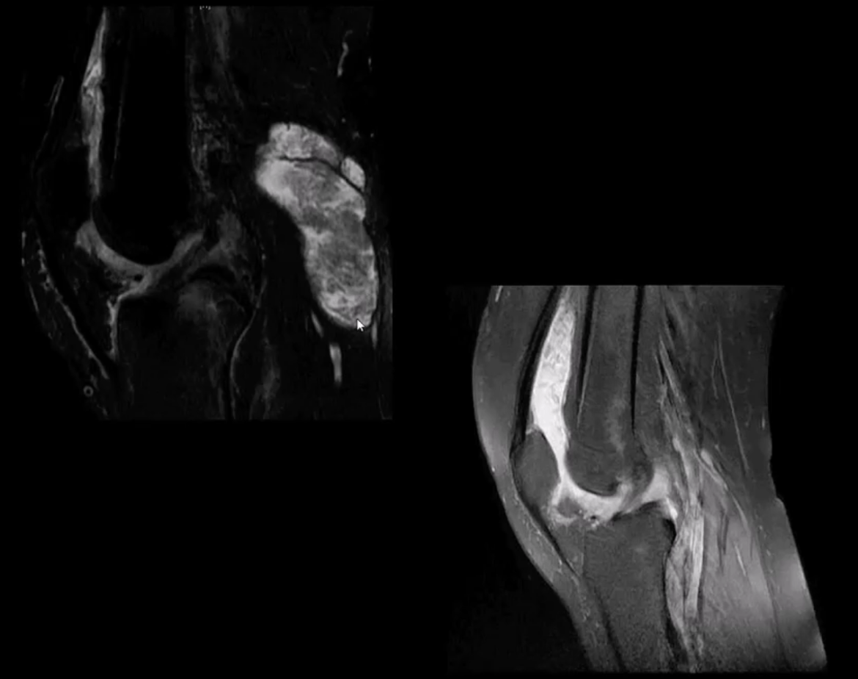 Artritis de rodilla atención quiropráctica el paso tx.