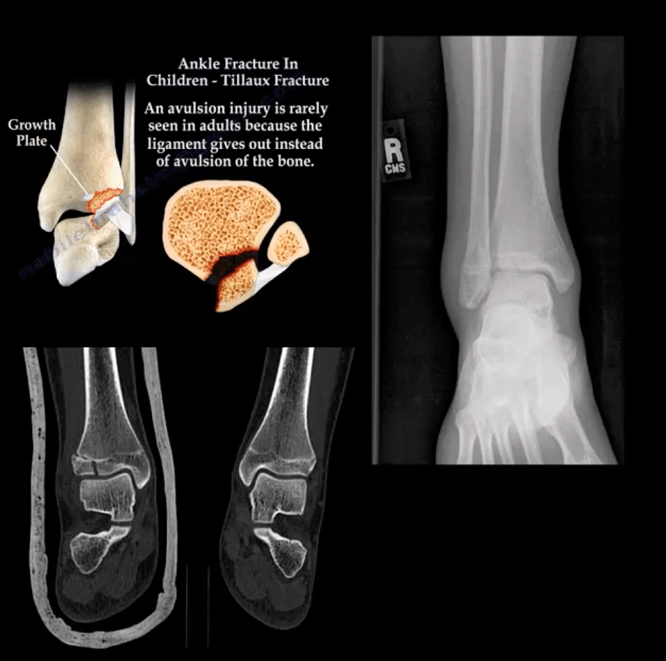 ankle foot arthritis and trauma el paso tx.