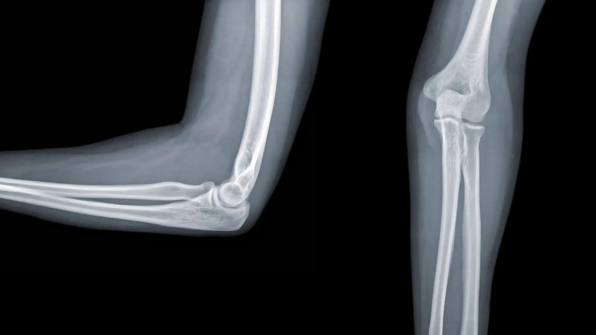 injekciók csontok és ízületek fájdalmához csípő ropog, hogyan kell kezelni