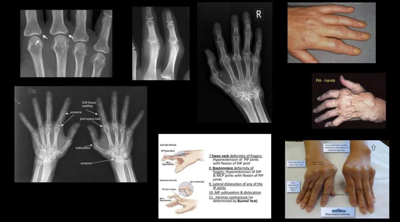 Radioterapia - terapie cu radiatii, raze X sau iradiere | Cancer