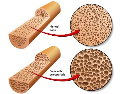 osteopenio kaj osteoporozo-damaĝo medicina kuracada terapio el paŝo tx.
