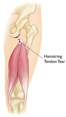 Diagrama de lesiones de los isquiotibiales proximales 2 | El Paso, TX Quiropráctico