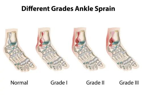 11860 Vista Del Sol, Ste. 128 Ankle Sprain Degrees of Injury & Chiropractic Therapy