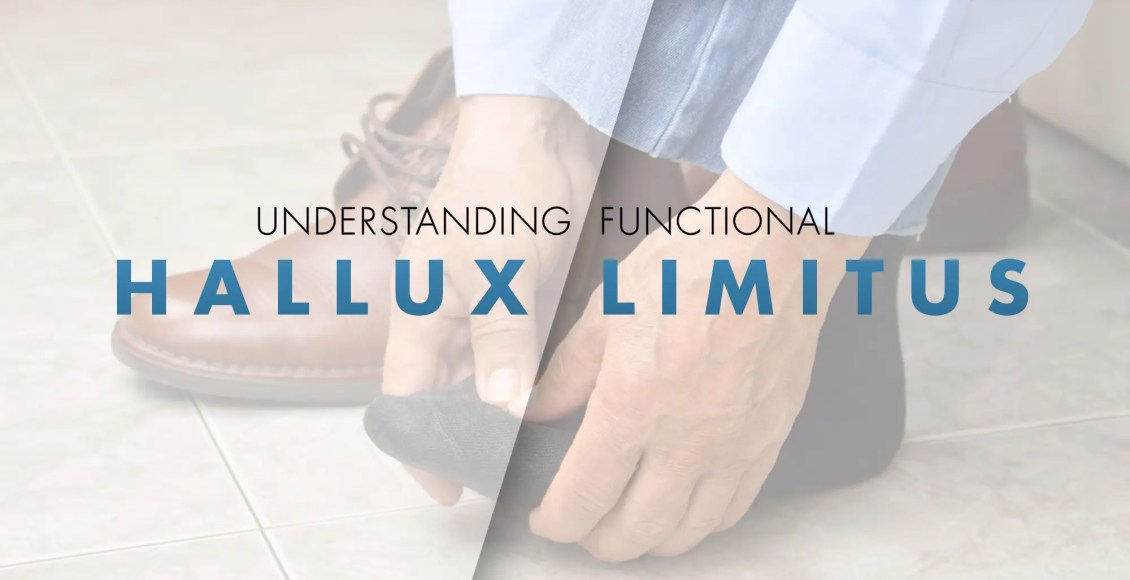 Entendiendo el Hallux Limitus Funcional | El Paso, TX Quiropráctico