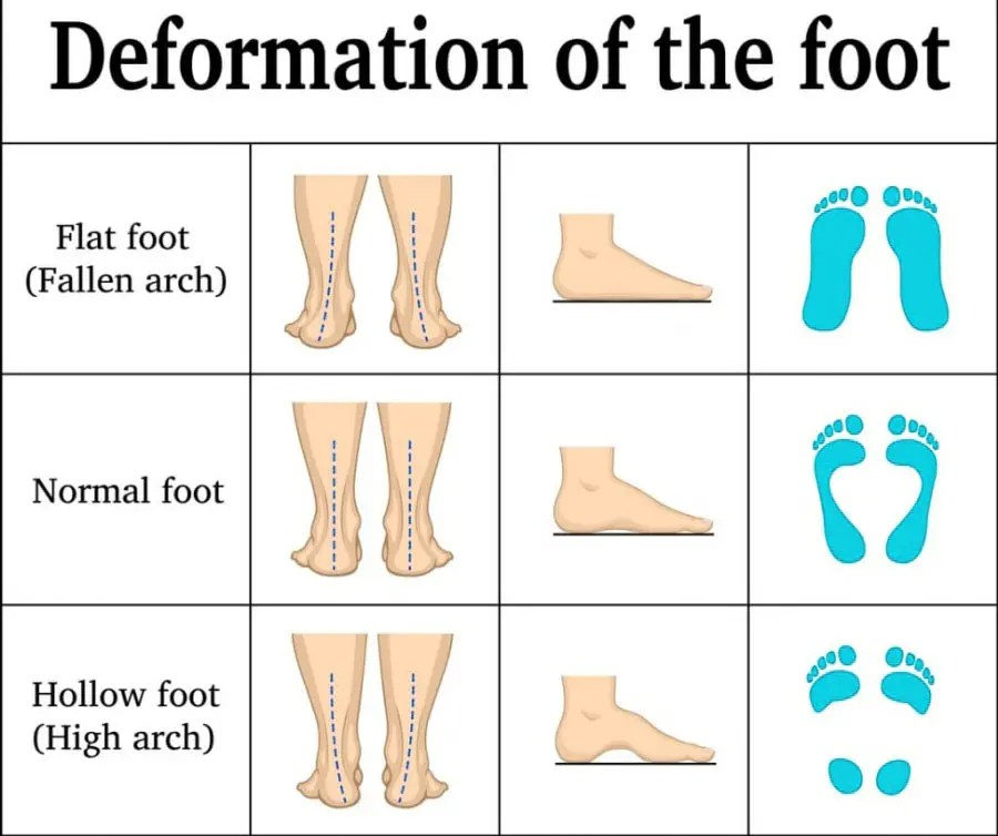 11860 Vista Del Sol, Ste. 128 Summer Footwear, Back Pain and What To Know