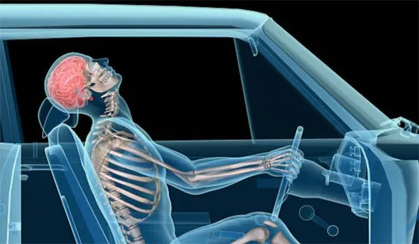 11860 Vista Del Sol, Ste. 128 Whiplash, Herniated Neck, Radiculopathy, and Chiropractic Relief