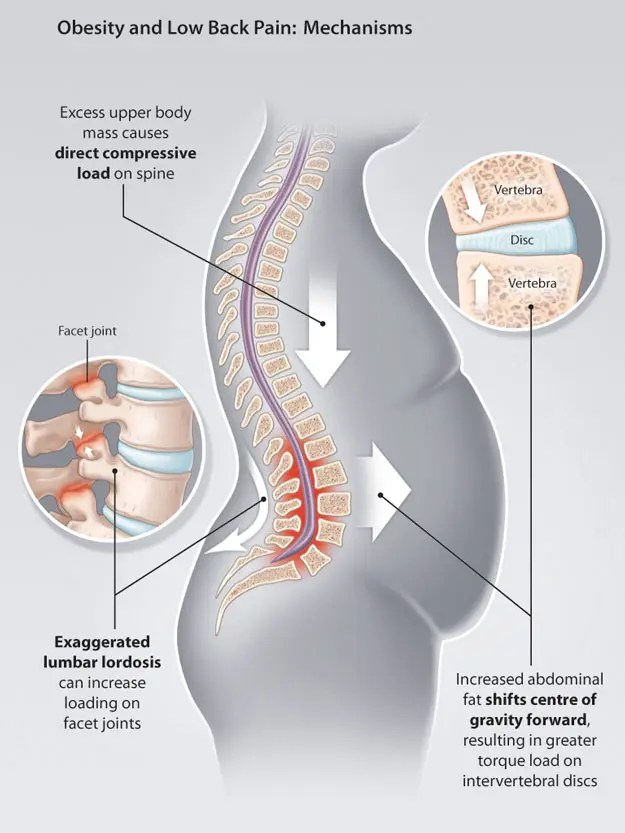 11860 Vista Del Sol, Ste. 128 Sciatica Relief Through Chiropractic-Health Coaching Weight Loss
