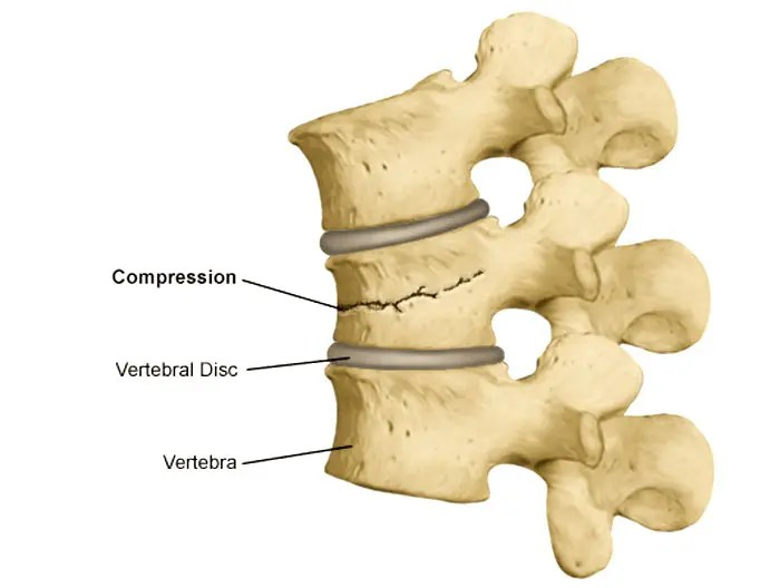 11860 Vista Del Sol, Ste. 128 Avoiding and Preventing Spinal Compression Fractures