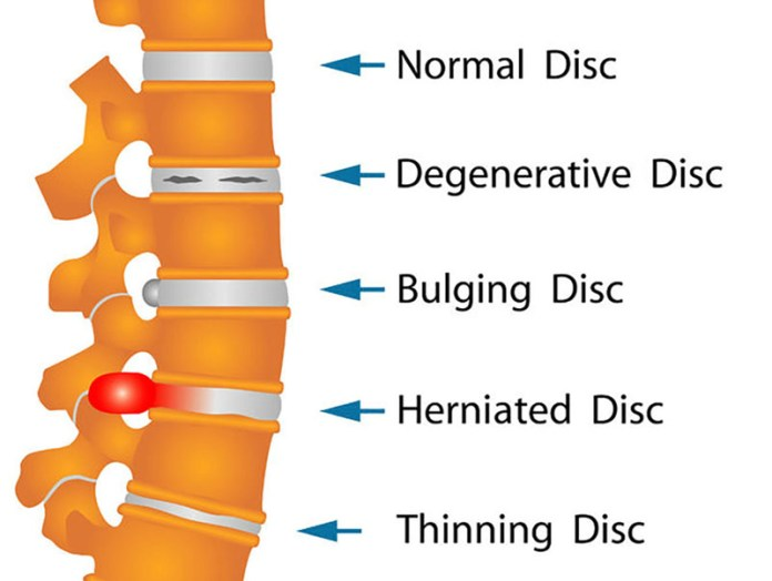 11860 Vista Del Sol, Ste. 128 Neck Bulging Disc/s Chiropractic Exercises and Stretches