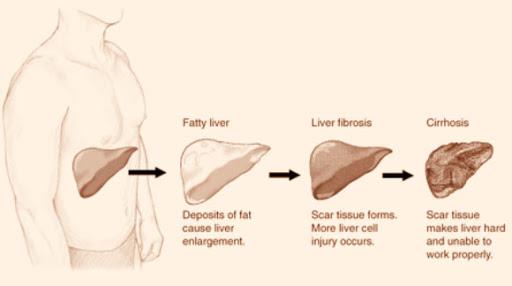 APRI  ve Fibro Test : Karaciğer fibrozisi ve siroza gidişi öngören formülasyonlar.
