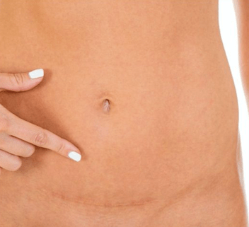 Hernias, surgeries and scars, oh my!