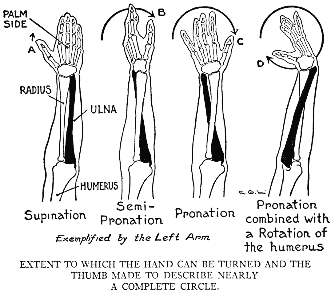 Over Pronation