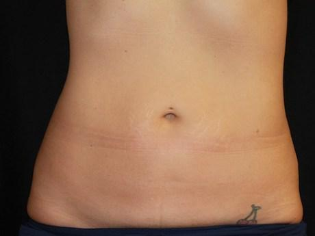 coolsculpting belly bulge after