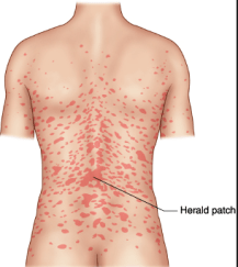 Know facts about this skin disease Pityriasis rosea ...