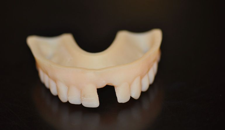Eugene Dentist Dr. Don Dexter's missing front tooth dental model