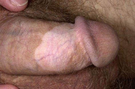 vitiligo_032904.jpg