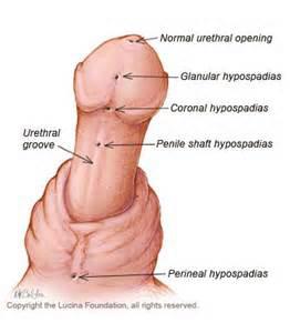 hypospadic 2